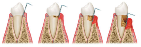 Periodontal Treatment | Madsen and Hirsch Dental Care | Madison, WI Dentists