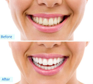 Teeth Whitening | Madsen and Hirsch Dental Care | Madison, WI Dentists