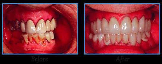 Dentures | Dr. Madsen and Dr. Hirsch | Madison, WI Dentists