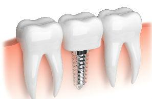 Implant Dentistry | | Madsen & Hirsch Dental Care | Dentist Madison, WI