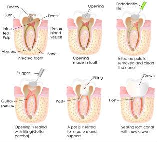 Root Canals | Madsen & Hirsch Dental Care | Dentist Madison, WI