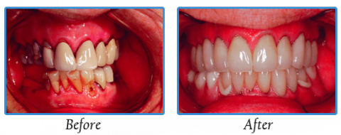 Dentures | Dr. Madsen and Dr. Hirsch | Madison, WI Dentists